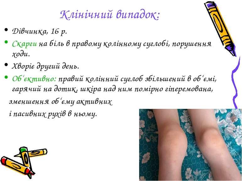 Клінічний випадок: Дівчинка, 16 р. Скарги на біль в правому колінному суглобі...