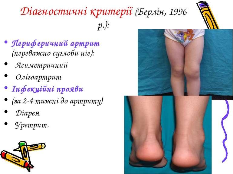 Діагностичні критерії (Берлін, 1996 р.): Периферичний артрит (переважно сугло...