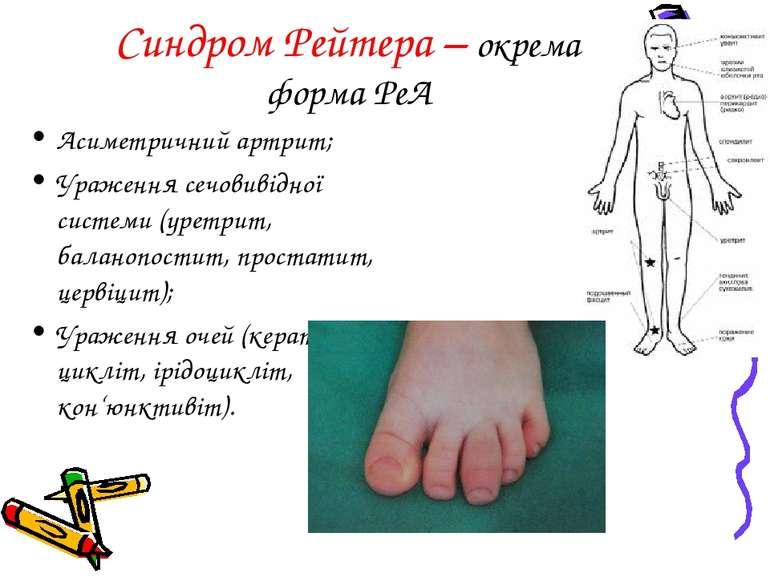 Синдром Рейтера – окрема форма РеА Асиметричний артрит; Ураження сечовивідної...