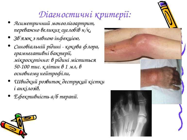 Діагностичні критерії: Асиметричний моноолігоартрит, переважно великих суглоб...