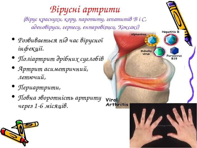 Вірусні артрити (вірус краснухи, кору, паротиту, гепатитів В і С, аденовіруси...