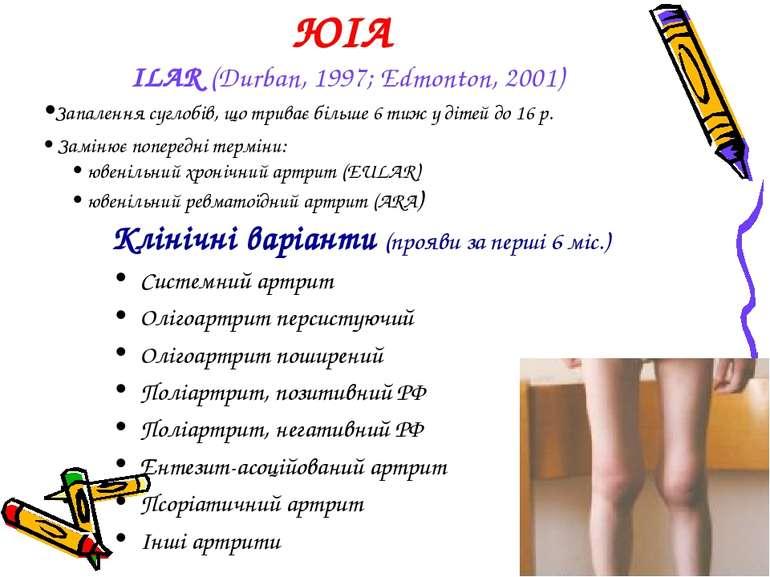 ЮІА ILAR (Durban, 1997; Edmonton, 2001) •Запалення суглобів, що триває більше...