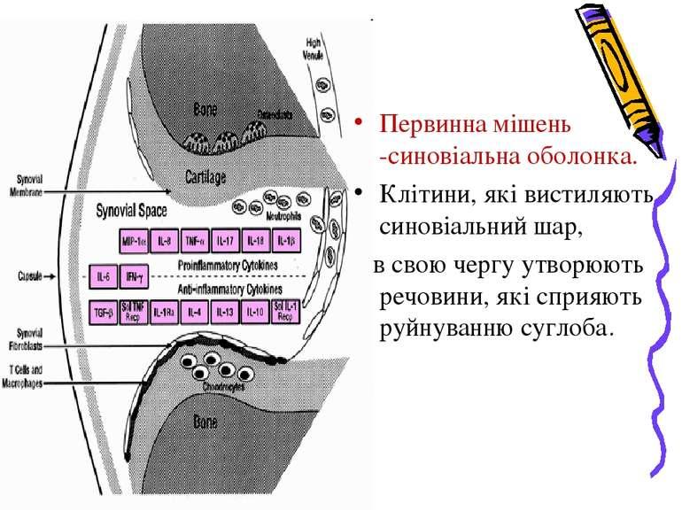 Первинна мішень -синовіальна оболонка. Клітини, які вистиляють синовіальний ш...
