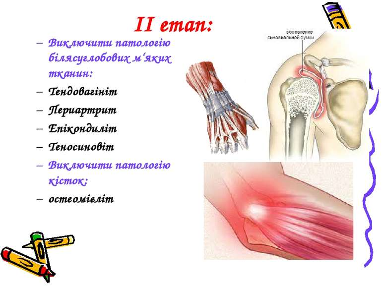 ІІ етап: Виключити патологію білясуглобових м'яких тканин: Тендовагініт Периа...