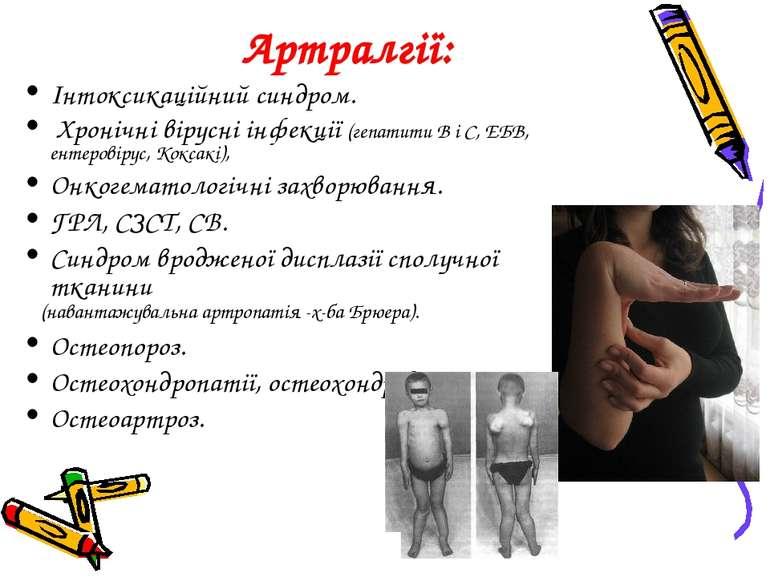 Артралгії: Інтоксикаційний синдром. Хронічні вірусні інфекції (гепатити В і С...