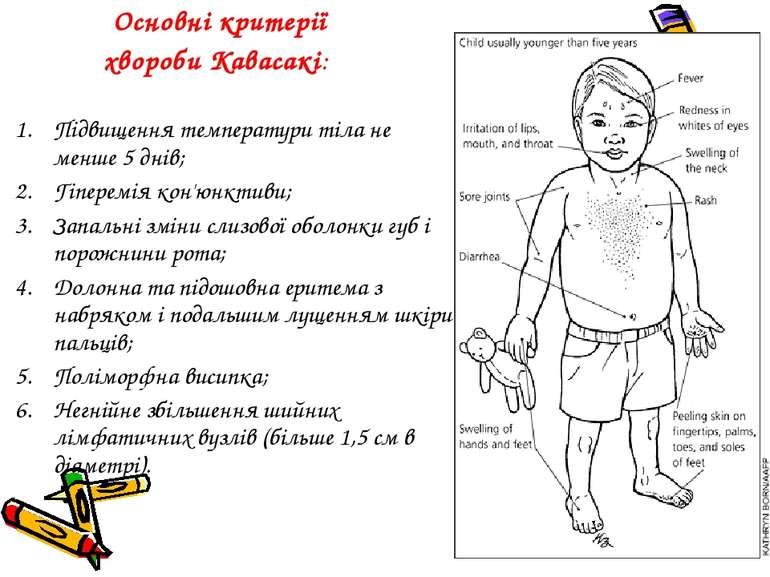 Основні критерії хвороби Кавасакі: Підвищення температури тіла не менше 5 дні...