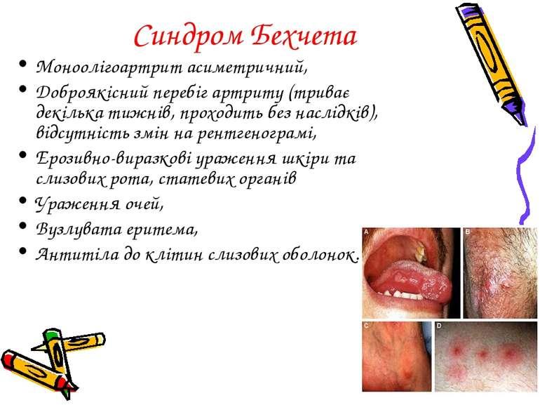 Синдром Бехчета Моноолігоартрит асиметричний, Доброякісний перебіг артриту (т...