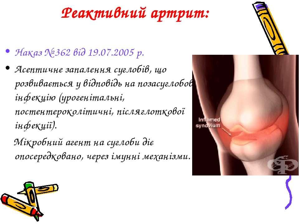 Реактивний артрит: Наказ № 362 від 19.07.2005 р. Асептичне запалення суглобів...