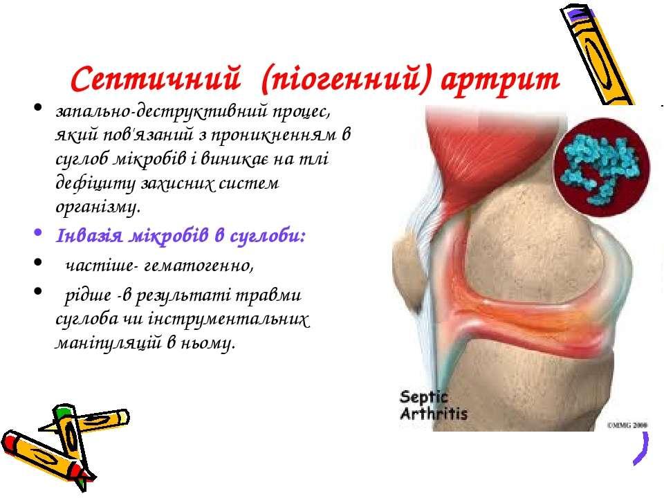 Септичний (піогенний) артрит запально-деструктивний процес, який пов'язаний з...