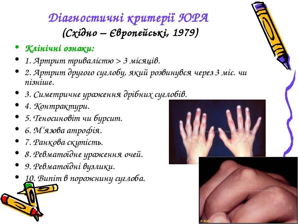 Діагностичні критерії ЮРА (Східно – Європейські, 1979) Клінічні ознаки: 1. Ар...