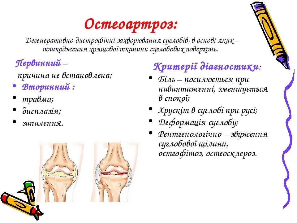 Остеоартроз: Дегенеративно-дистрофічні захворювання суглобів, в основі яких –...