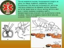 Техніка непрямого масажу: постраждалого кладуть на спину, на тверду поверхню,...