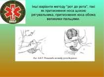 """Інші варіанти методу """"рот до рота"""", такі як притиснення носа щокою рятувальни..."""