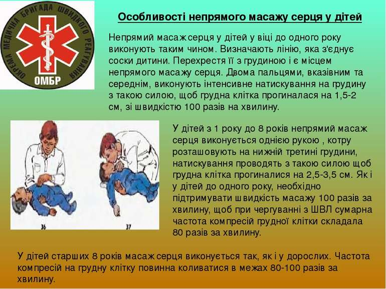 Особливості непрямого масажу серця у дітей Непрямий масаж серця у дітей у віц...