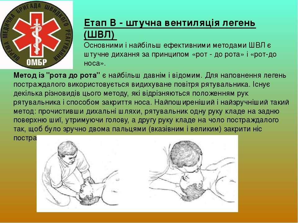 Етап B - штучна вентиляція легень (ШВЛ) Основними і найбільш ефективними мето...