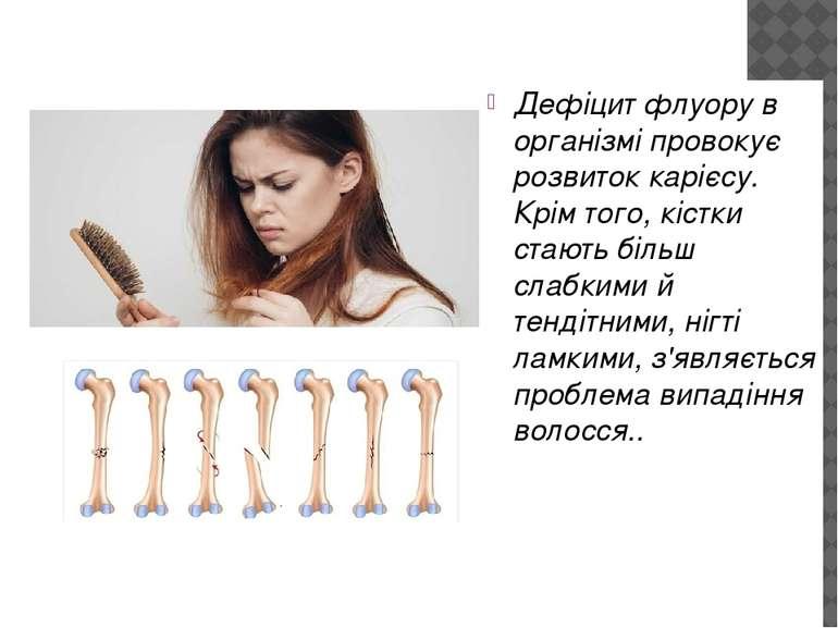 Дефіцит флуору в організмі провокує розвиток карієсу. Крім того, кістки стают...