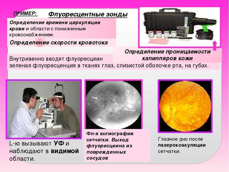 ПРИМЕР: Определение скорости кровотока Внутривенно вводят флуоресцеин . Через...