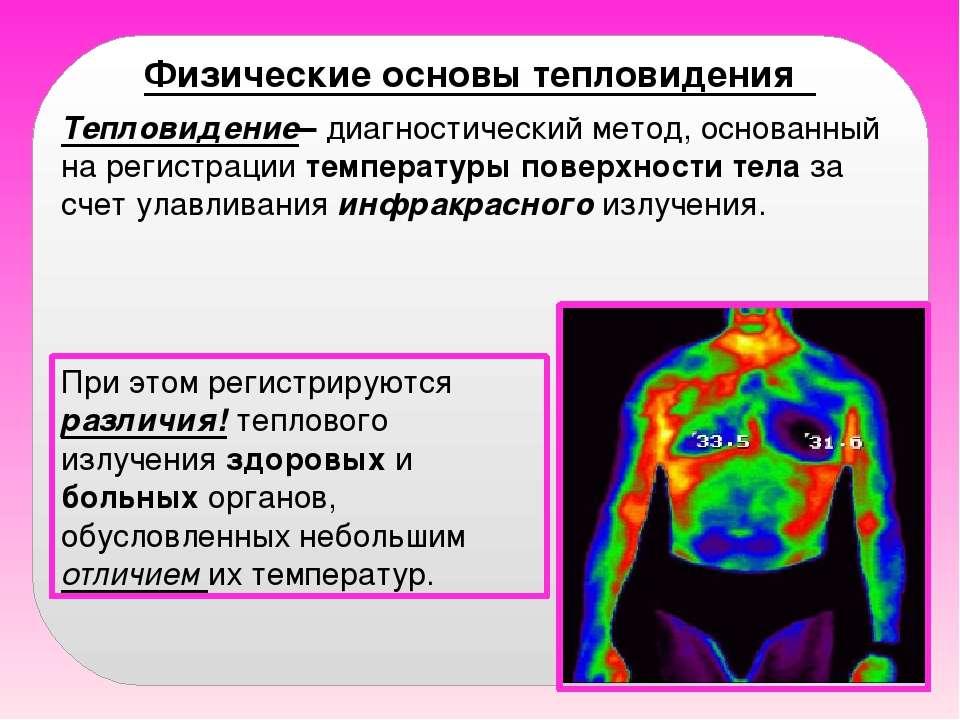 Физические основы тепловидения При этом регистрируются различия! теплового из...