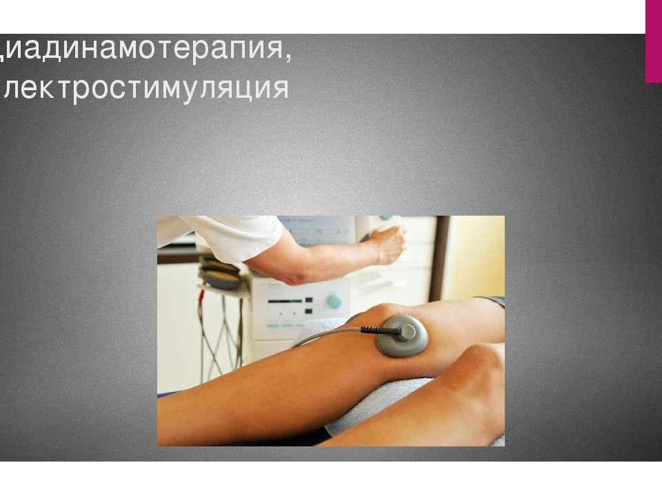 Диадинамотерапия, Электростимуляция