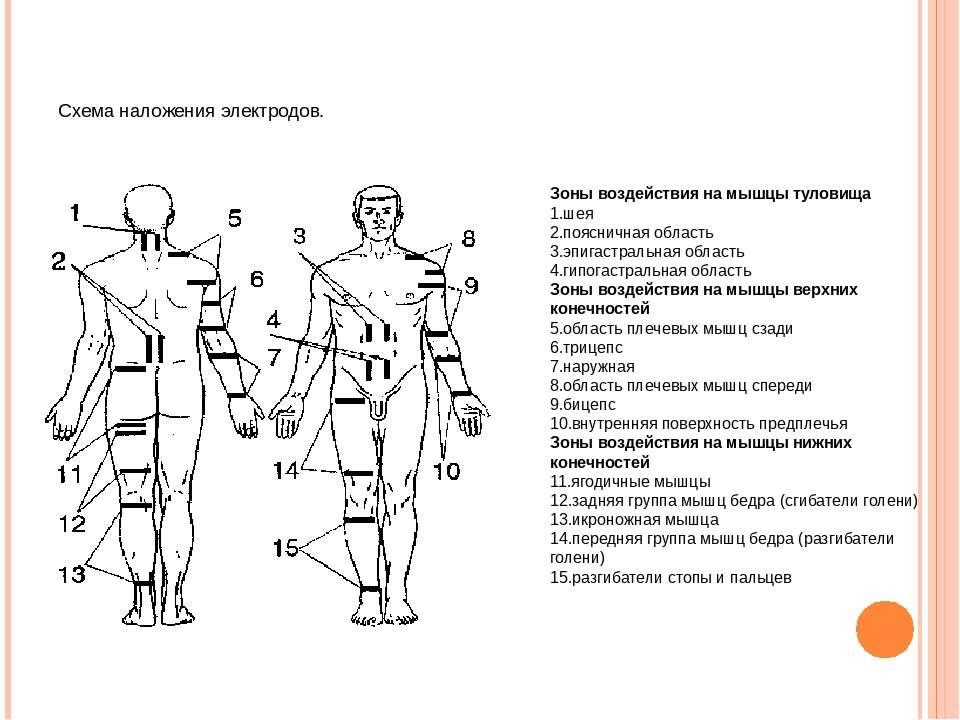 Схема наложения электродов. Зоны воздействия на мышцы туловища шея поясничная...