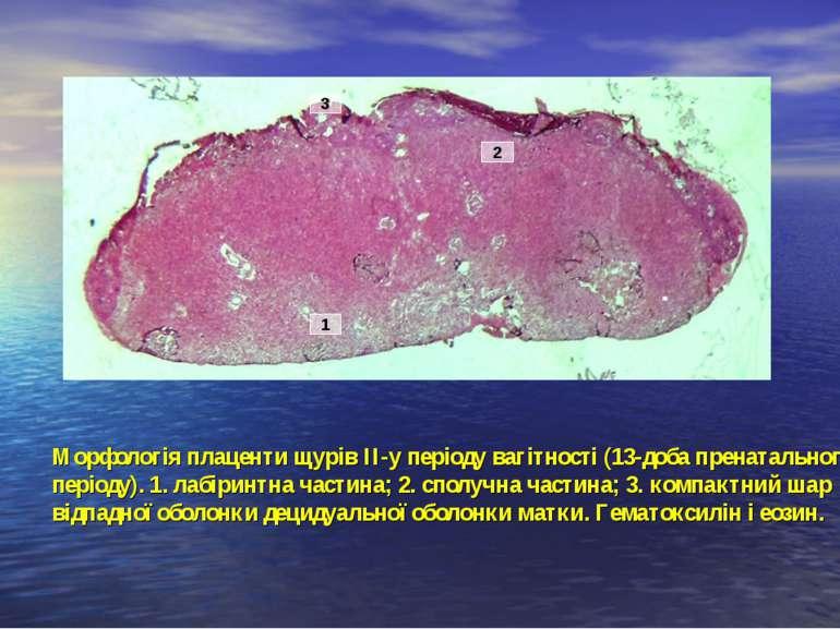 Морфологія плаценти щурів ІІ-у періоду вагітності (13-доба пренатального пері...