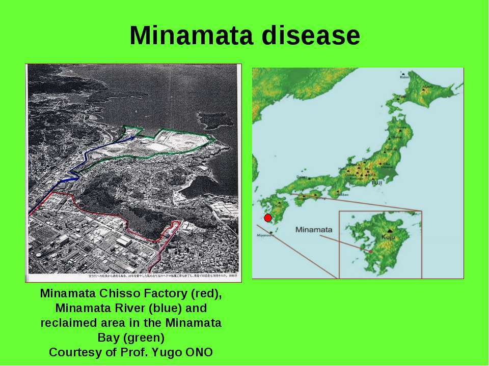 Minamata disease Minamata Chisso Factory (red), Minamata River (blue) and rec...
