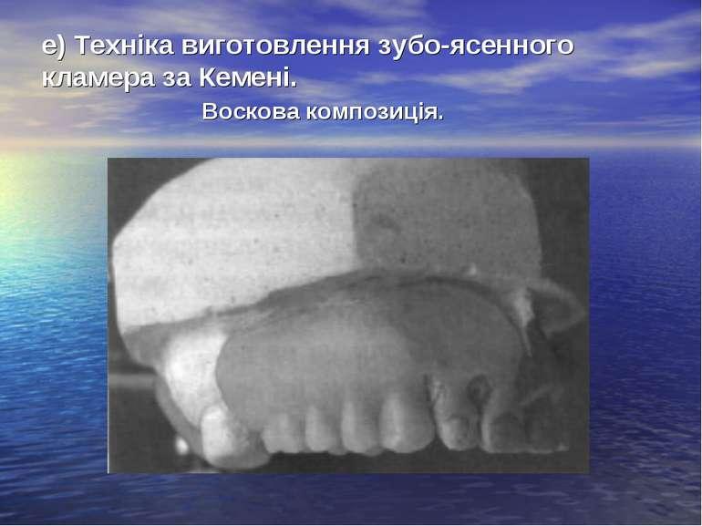 е) Техніка виготовлення зубо-ясенного кламера за Кемені. Воскова композиція.