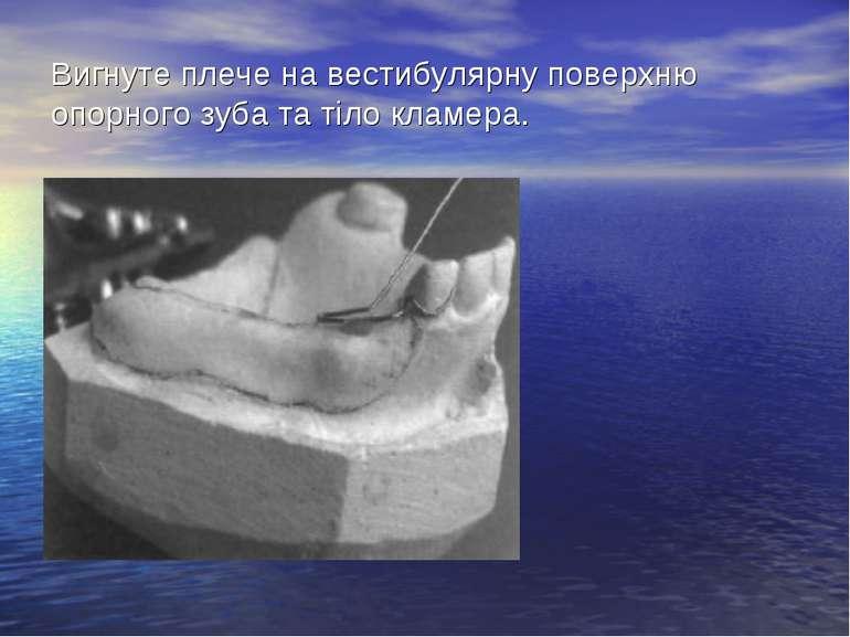Вигнуте плече на вестибулярну поверхню опорного зуба та тіло кламера.