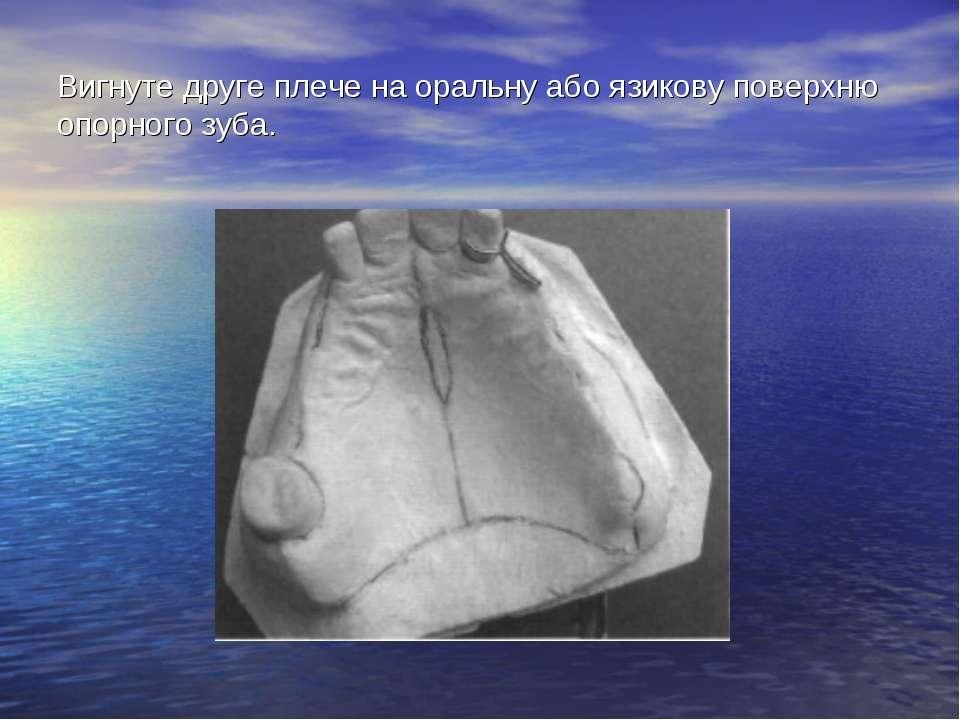 Вигнуте друге плече на оральну або язикову поверхню опорного зуба.
