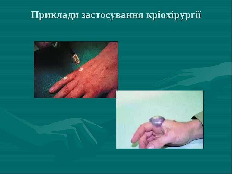 Приклади застосування кріохірургії