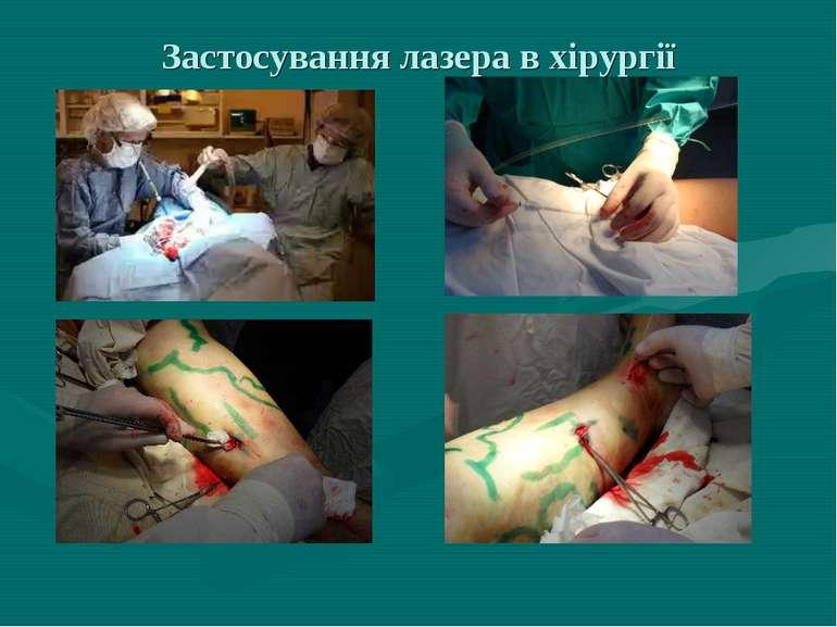 Застосування лазера в хірургії