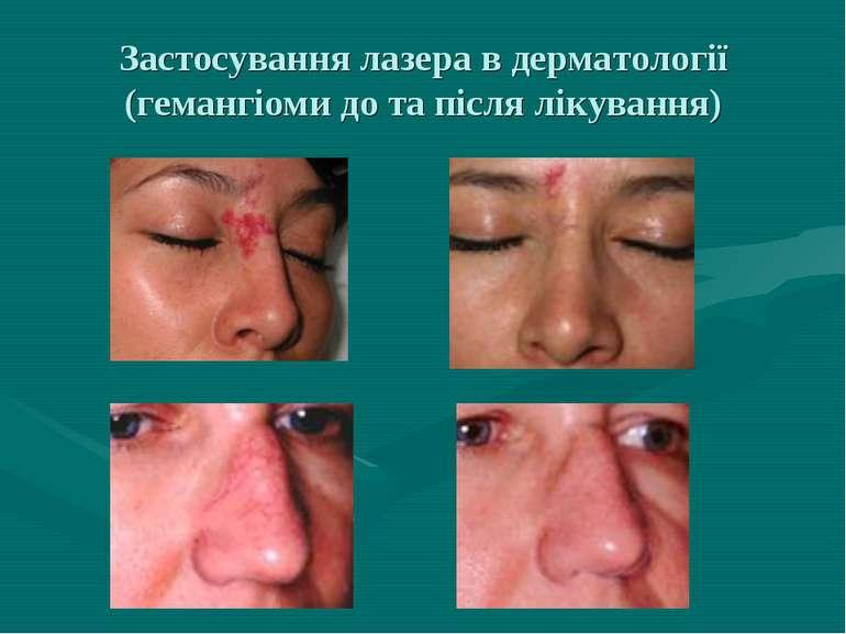 Застосування лазера в дерматології (гемангіоми до та після лікування)