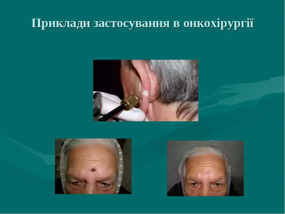 Приклади застосування в онкохірургії