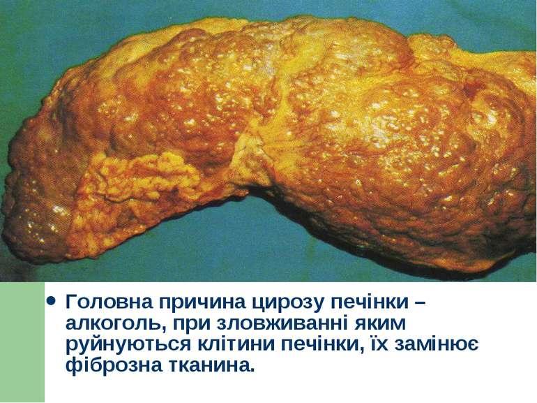 Головна причина цирозу печінки – алкоголь, при зловживанні яким руйнуються кл...