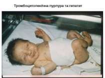 Тромбоцитопенічна пурпура та гепатит