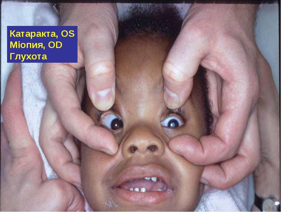 Катаракта, OS Міопия, OD Глухота