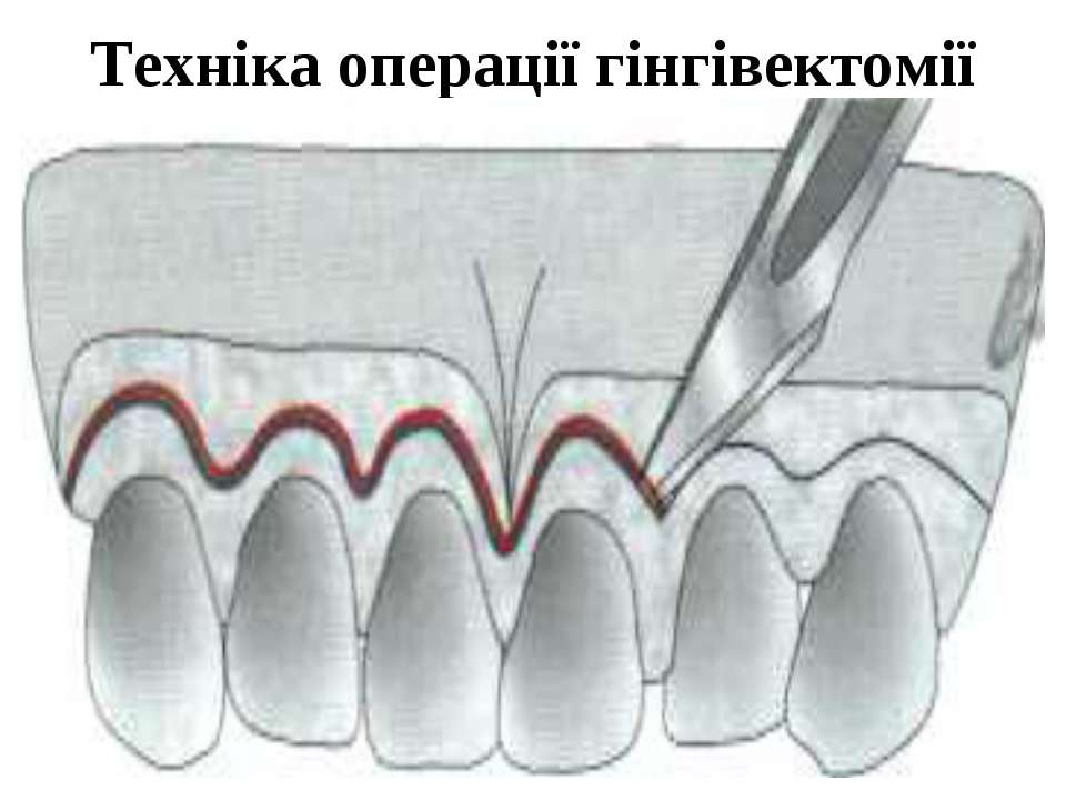 Техніка операції гінгівектомії