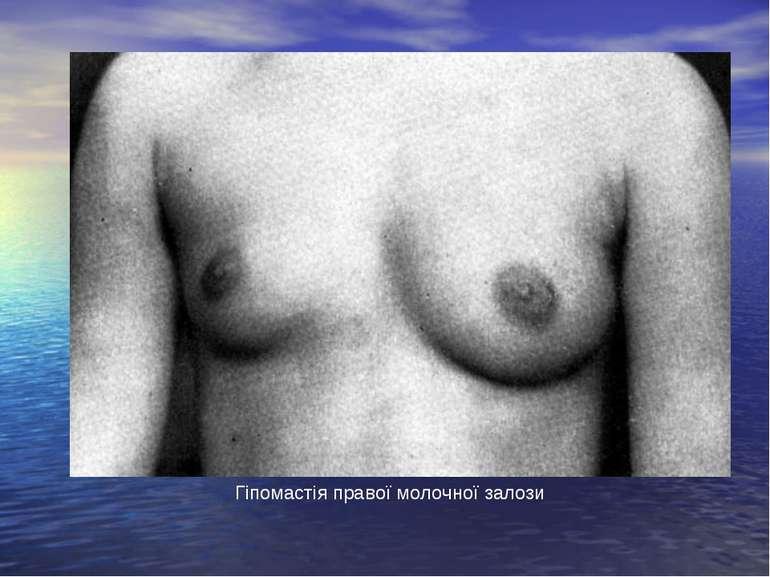 Гіпомастія правої молочної залози