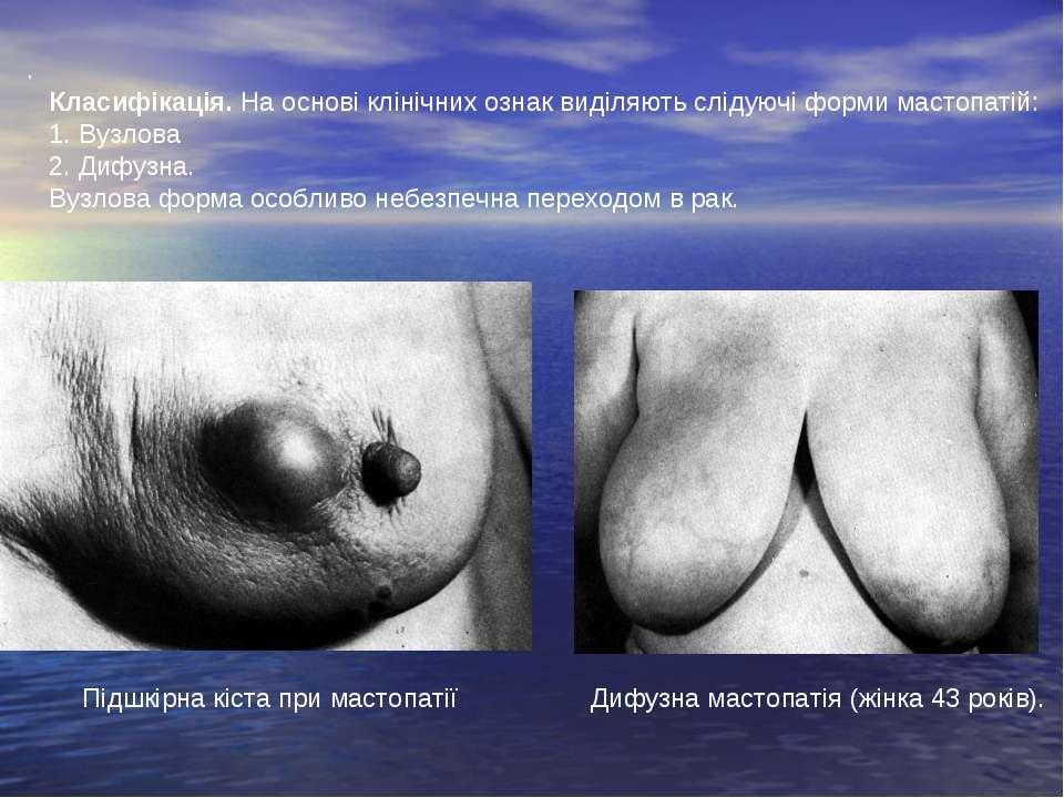 Дифузна мастопатія (жінка 43 років). Підшкірна кіста при мастопатії . Клас...