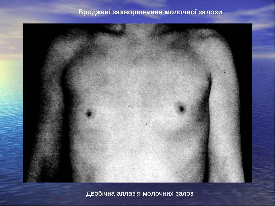 Двобічна аплазія молочних залоз Вроджені захворювання молочної залози.