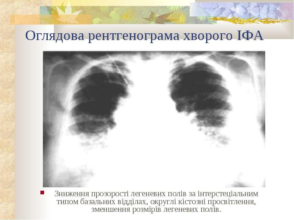 Оглядова рентгенограма хворого ІФА Зниження прозорості легеневих полів за інт...