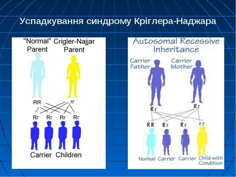 Успадкування синдрому Кріглера-Наджара