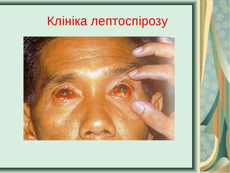 Клініка лептоспірозу