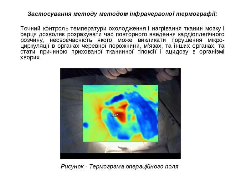 Застосування методу методом інфрачервоної термографії: Точний контроль темпер...