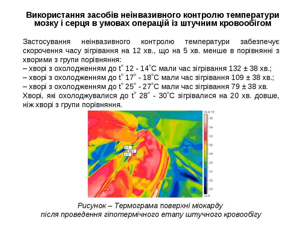 Використання засобів неінвазивного контролю температури мозку і серця в умова...