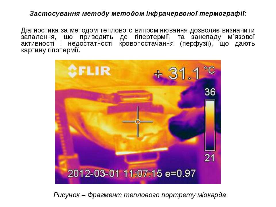 Застосування методу методом інфрачервоної термографії: Діагностика за методом...