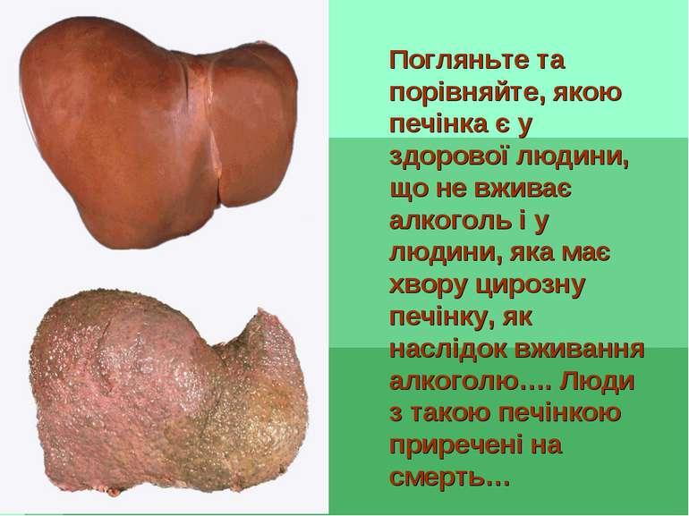 Погляньте та порівняйте, якою печінка є у здорової людини, що не вживає алког...