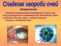 Кімеролопія Хвороба викликається домінантним геном, при чому порушується суті...