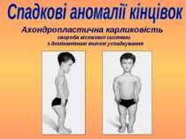 Ахондропластична карликовість хвороба кісткової системи з домінантним типом у...