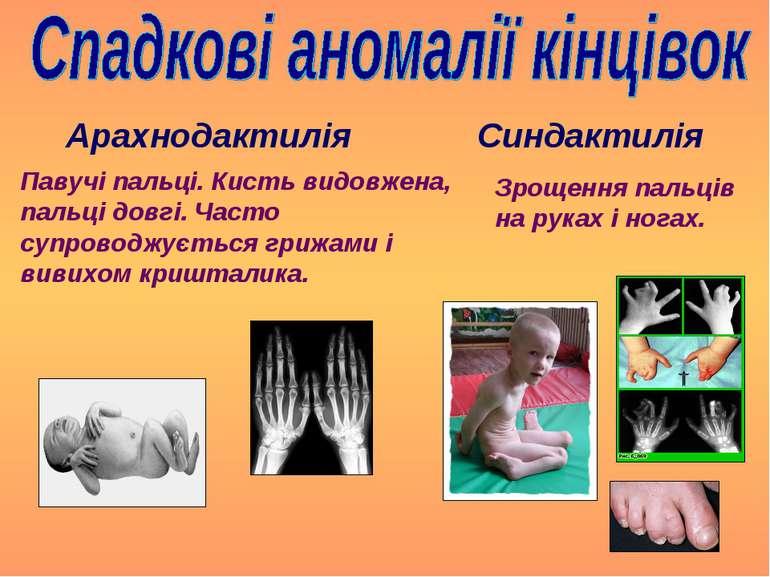 Синдактилія Арахнодактилія Павучі пальці. Кисть видовжена, пальці довгі. Част...